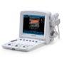 Портативная ультразвуковая диагностическая система EDAN U50 Prime Edition